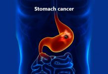 eating foods stomach cancer